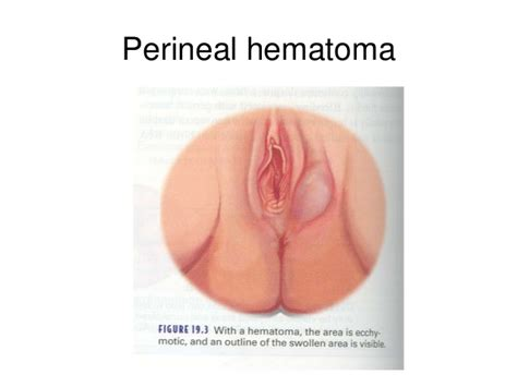 hematoma after c section 9 complication of postpartum