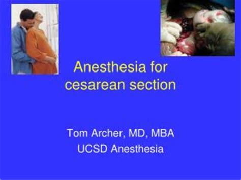 anesthesia in cesarean section ppt asra guidelines for neuraxial anesthesia obstetrics