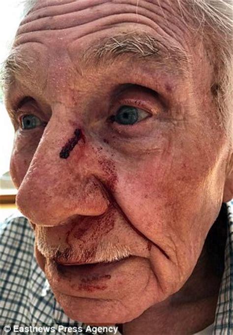 world war 2 veteran had teeth knocked out in brutal road