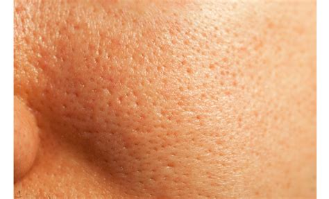 12 Ways To Minimize Your Pores by Large Pores Scl Charleston Aesthetics Coolsculpting
