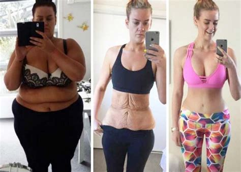 flabby skin 60 year female weight loss skin removal surgery success story simone anderson