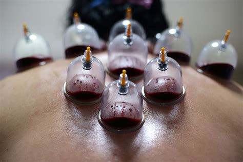 Suction Cup Detox cupping therapy detoxification