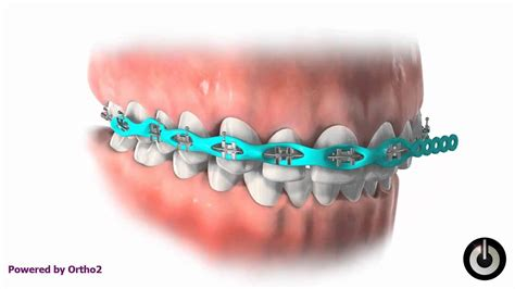 power chain braces colors power chain power chain is a tool we use in orthodontics