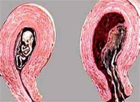 Aborto Con Cytotec 9 Semanas El Aborto