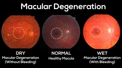 blue light and macular degeneration over exposure to uv and blue light can lead to macular