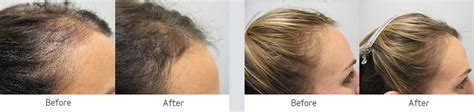 viviscal before and after hair length afro viviscal before and after hair length afro viviscal