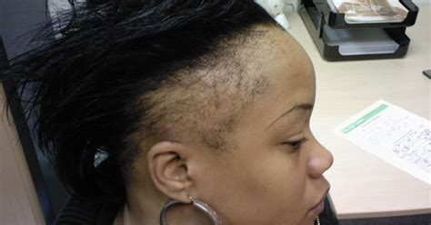 balding sides in wonen turned into a short hair cut braid styles for black women with thin hair hairstyles