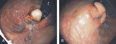 Obat Tradisional Wasir External pictures skin tag hemorrhoid image gallery hemorrhoidal