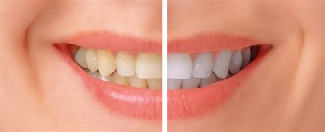 hollywood smile makeovers celebrity cosmetic dentists