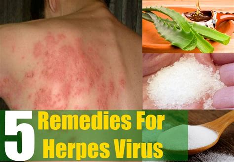 remedies to cure herpes zoster