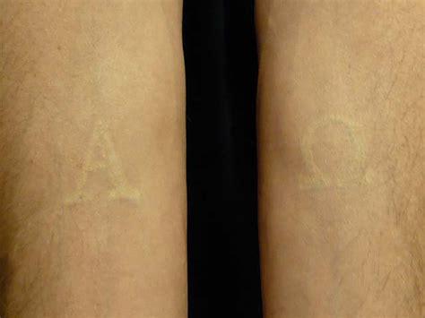 healed white ink tattoo white ink three years later