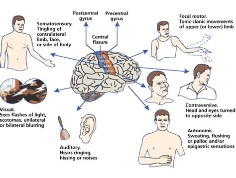 what causes seizures partial seizures epilepsy causes symptoms treatment partial seizures epilepsy