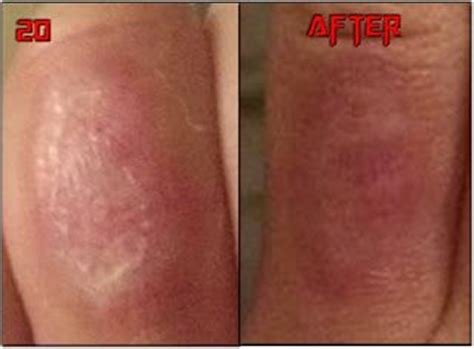 tattoo removal chemical peel chemical peels removal before after chemical