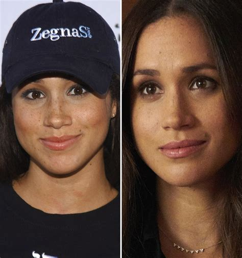Did Get A Nose by Did Meghan Markle Get A Nose Experts Weigh In On The