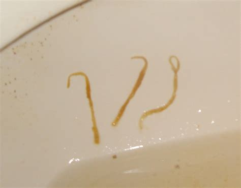 Worms In Stool Pictures by Expertise Needed For Identification At Parasites Support