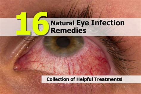 eye infection treatment 16 eye infection remedies