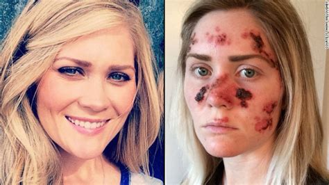 girl tanning bed skin cancer frequent tanner shares grisly skin cancer selfie cnn com