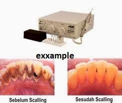 Umum Membersihkan Karang Gigi plak gigi dan karang gigi