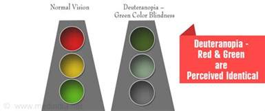 deutan color blindness deuteranopia vision