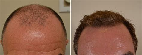 fue haircuts board certified hair transplant doctors