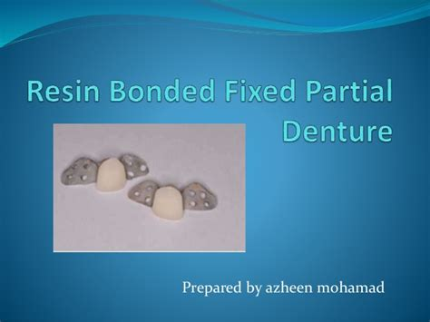 resin bonded fixed partial denture