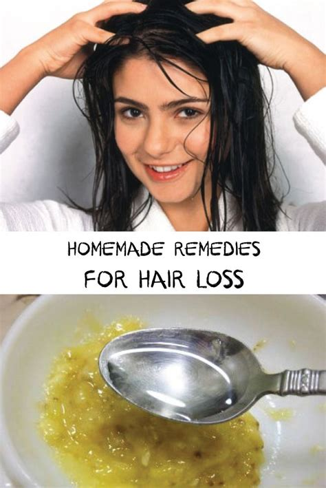 best homemade hair loss treatment 281 best images about hair loss treatments on pinterest