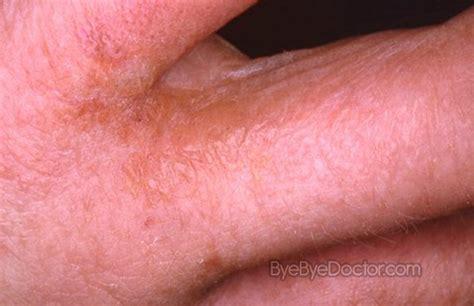 scabies symptoms causes images rash treatment home