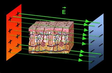 high voltage, short pulsed electric fields destroy cells