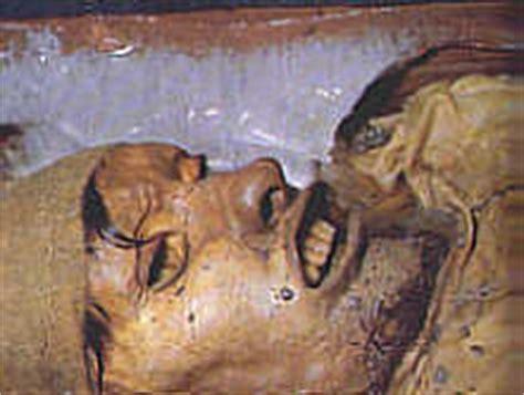 gallery eismumien und moorleichen
