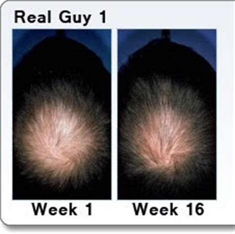 minoxidil before and after male hair regrowth for men best natural treatment products