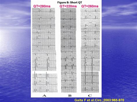 pattern recognition history treatment of ventricular arrhythmias