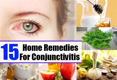 home remedies for conjunctivitis treatments