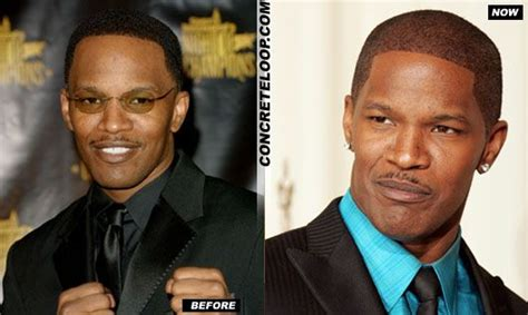 famous black men hairline restoration jamie foxx hairline hair transplant before and after