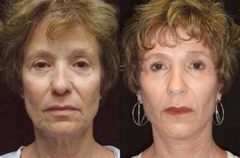 light chemical peel before and after chemical peel the skin center spa