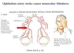 Blindness From Stroke ophthalmic artery stroke causes monocular blindness the