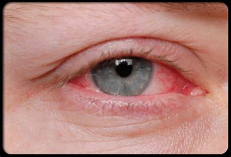 eye allergies tag westside optomerty