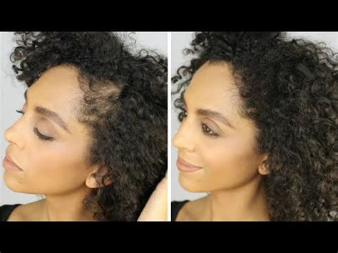 no edges thinning edges hair loss bald spots youtube no edges thin edges hair loss bald spots toppik hair
