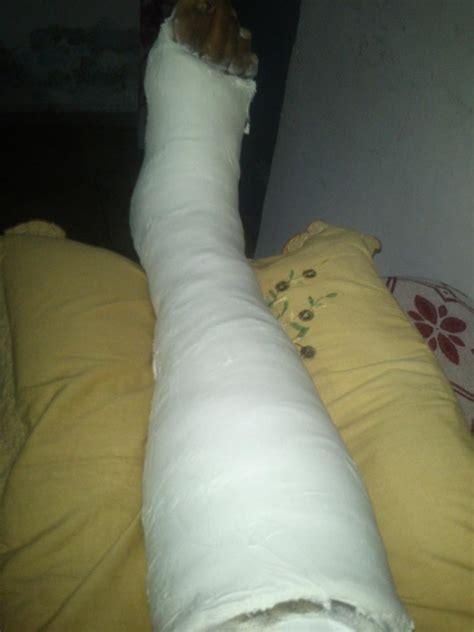 broken leg plaster on leg www pixshark images galleries with a bite