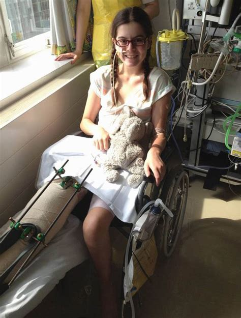 boating accident girl loses arm how hero doctors saved my limb after freak accident