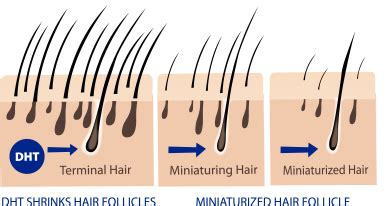 creatine 5 alpha reductase what causes hair loss