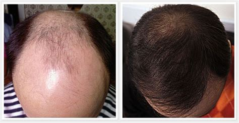 hair loss 50 years 10 promising scientific treatment which could prevent hair