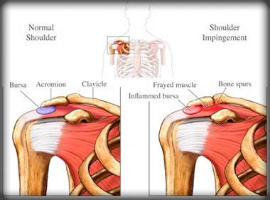 my shoulder hurts when i bench press bench press variations for shoulder pain kings fitness blog