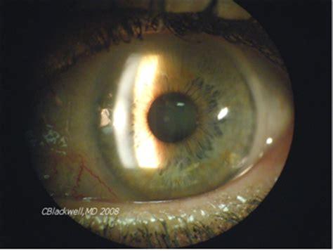 slit l eye exam kadaba rajkumar