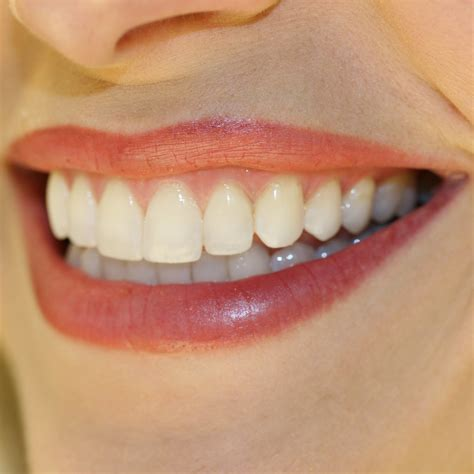 teeth of the teeth whitening for a whiter smile las vegas cosmetic dentistry