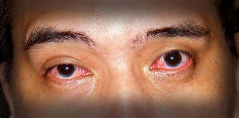 my eye is red watery and sensitive to light image gallery sore eyes