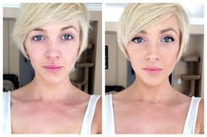 Front facing neutral expression side by side comparison of