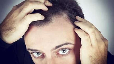 different hairlines for women why doesn t rogaine work on receding hairline