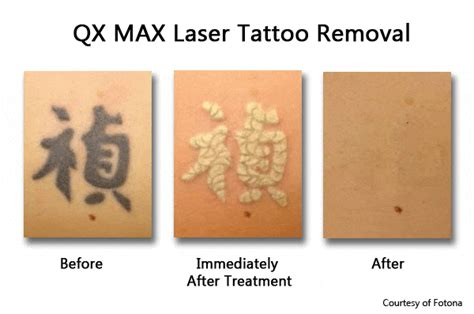 spectra laser tattoo removal removal in new york prasad cosmetic surgery