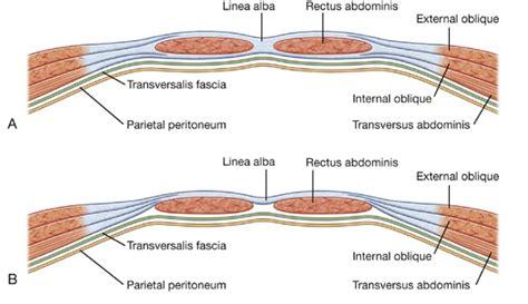 c section catheter abdomen basicmedical key
