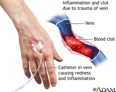 blood clot after c section symptoms superficial thrombophlebitis penn state hershey medical